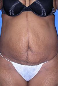 Tummy Tuck Patient Photo - Cosmetic Surgery Center