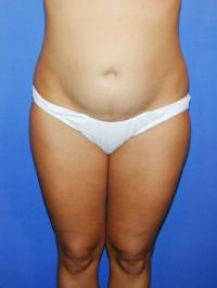 Recovery After Liposuction Dr Branman