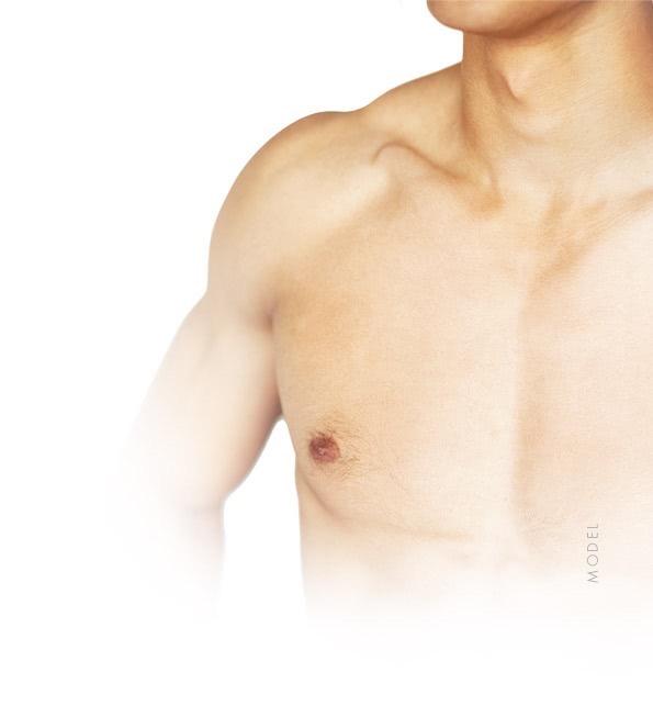 model male breast reduction little rock