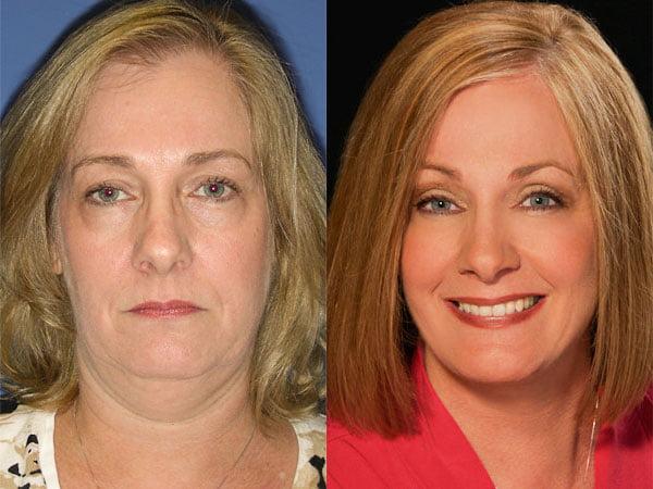 SmartLift Face Lift | Cosmetic Surgery Center | Dr. Rhys Branman