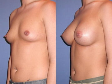 View our Breast Augmentation Before & After Gallery