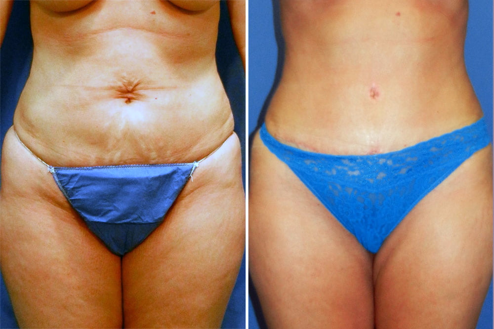 Tummy Tuck Case # 200