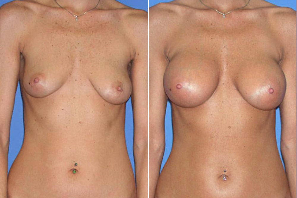 Breast Augmentation Case # 107