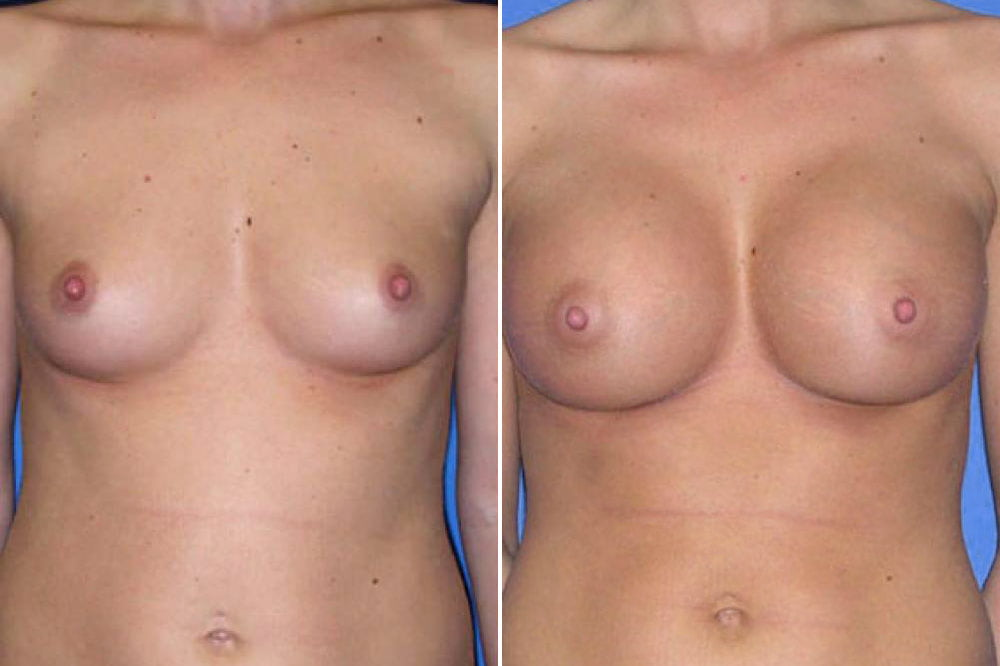 Breast Augmentation Case # 108