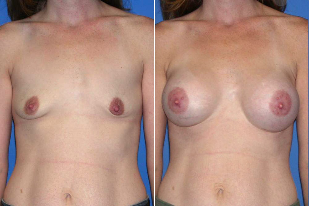 Breast Augmentation Case # 156