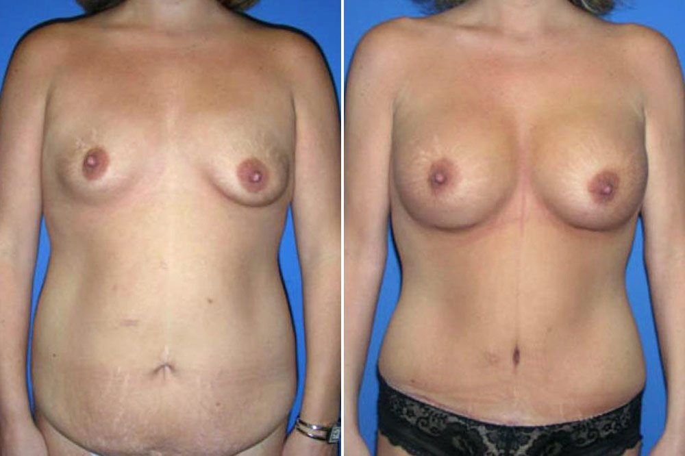 Breast Augmentation Case # 110