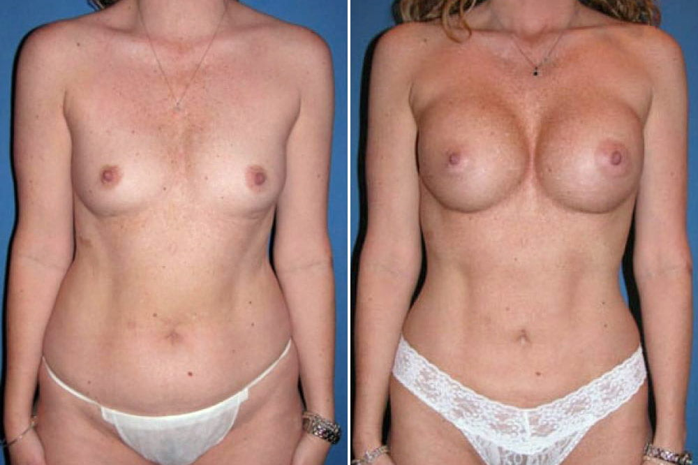 Breast Augmentation Case # 111