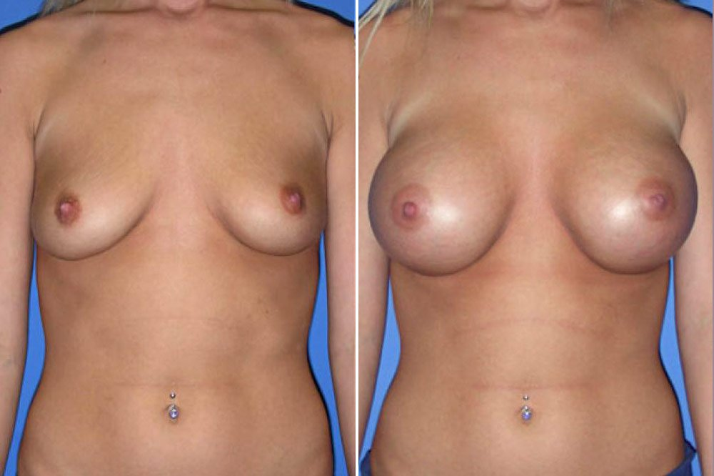 Breast Augmentation Case # 112