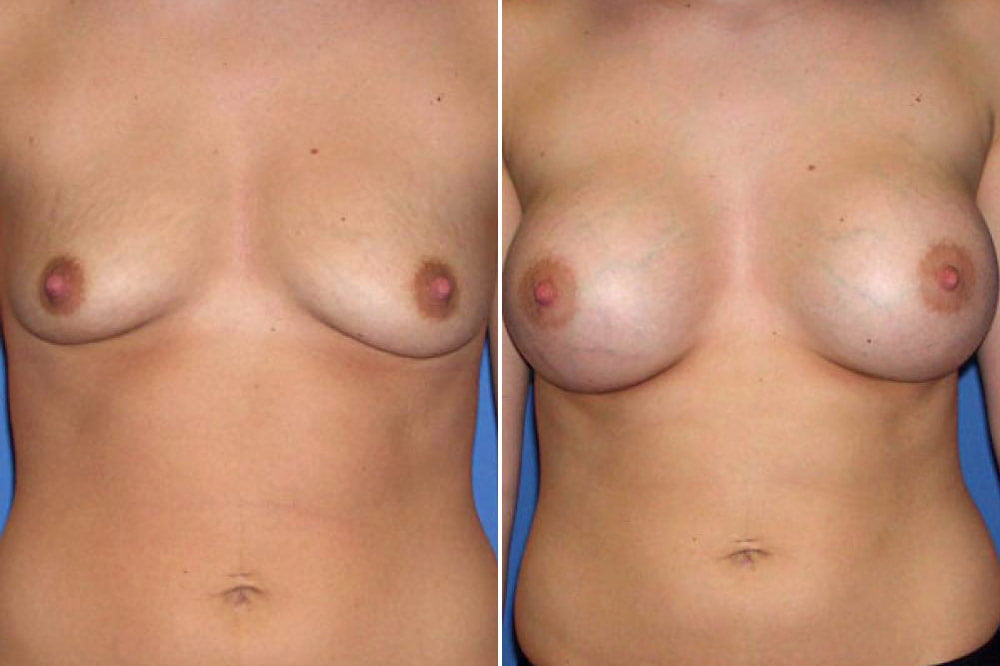 Breast Augmentation Case # 114