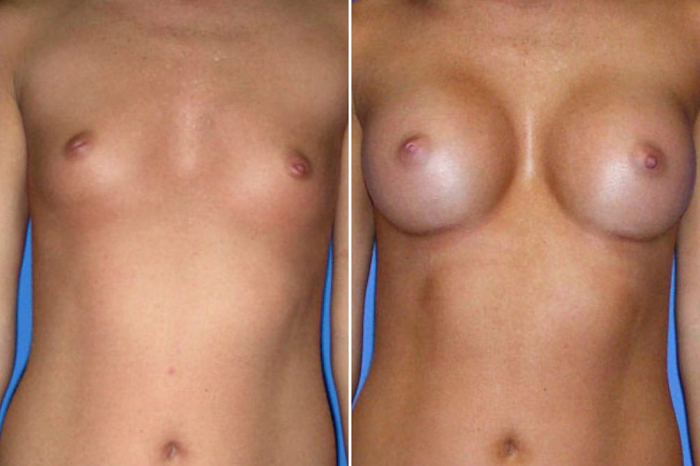 Breast Augmentation Case # 116