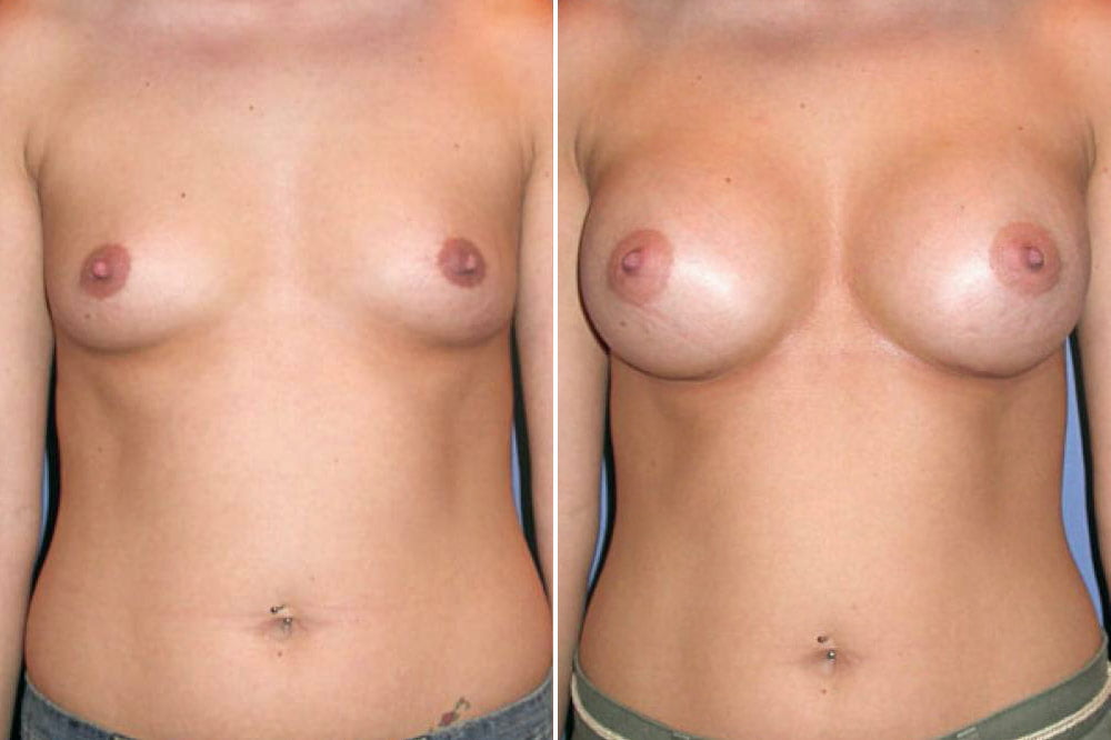 Breast Augmentation Case # 117