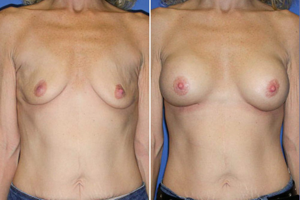 Breast Augmentation Case # 118