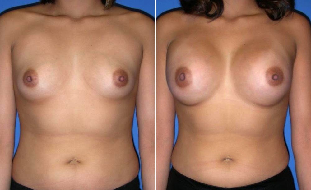 Breast Augmentation Case # 150