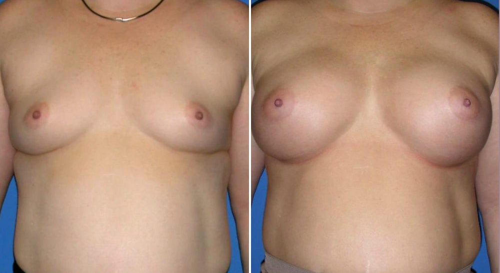 Breast Augmentation Case # 143