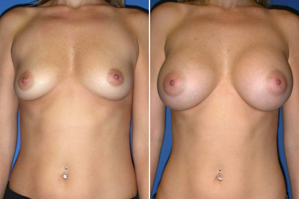 Breast Augmentation Case # 144