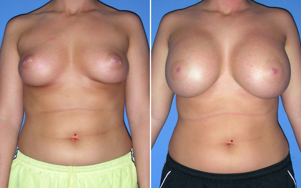 Breast Augmentation Case # 145