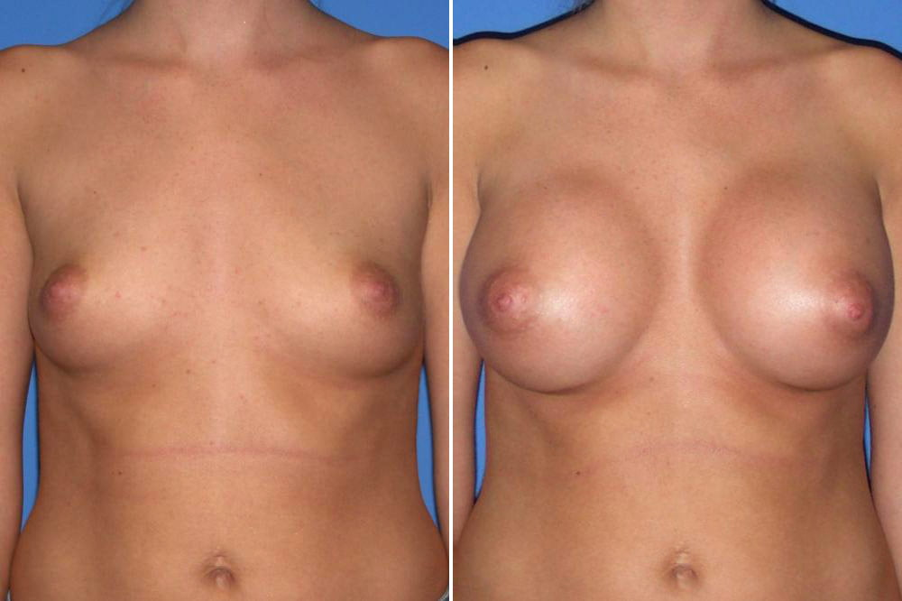 Breast Augmentation Case # 146