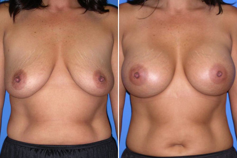 Breast Augmentation Case # 148