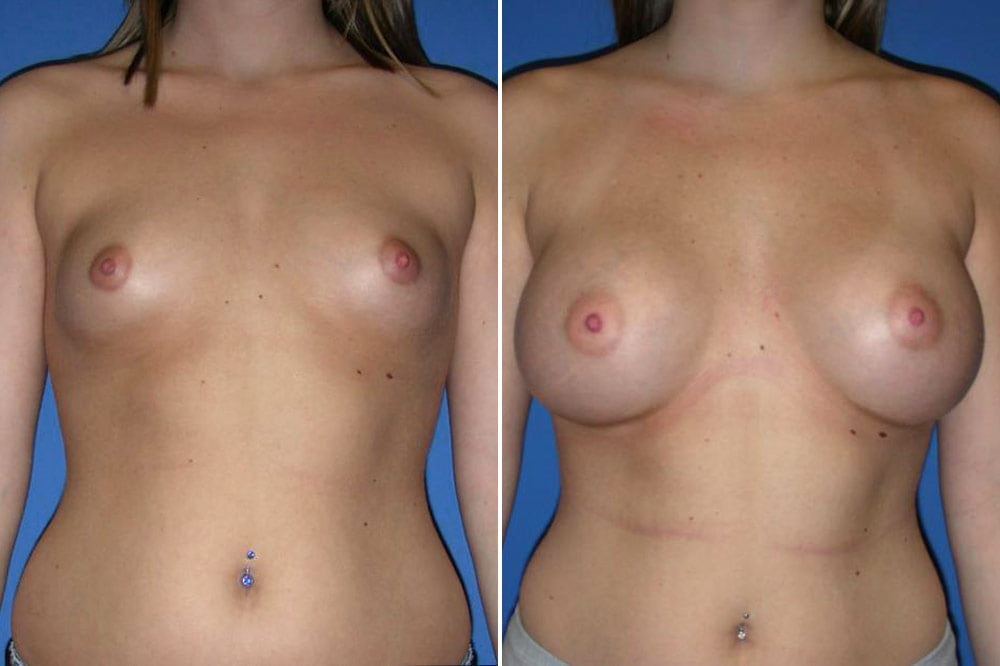 Breast Augmentation Case # 149
