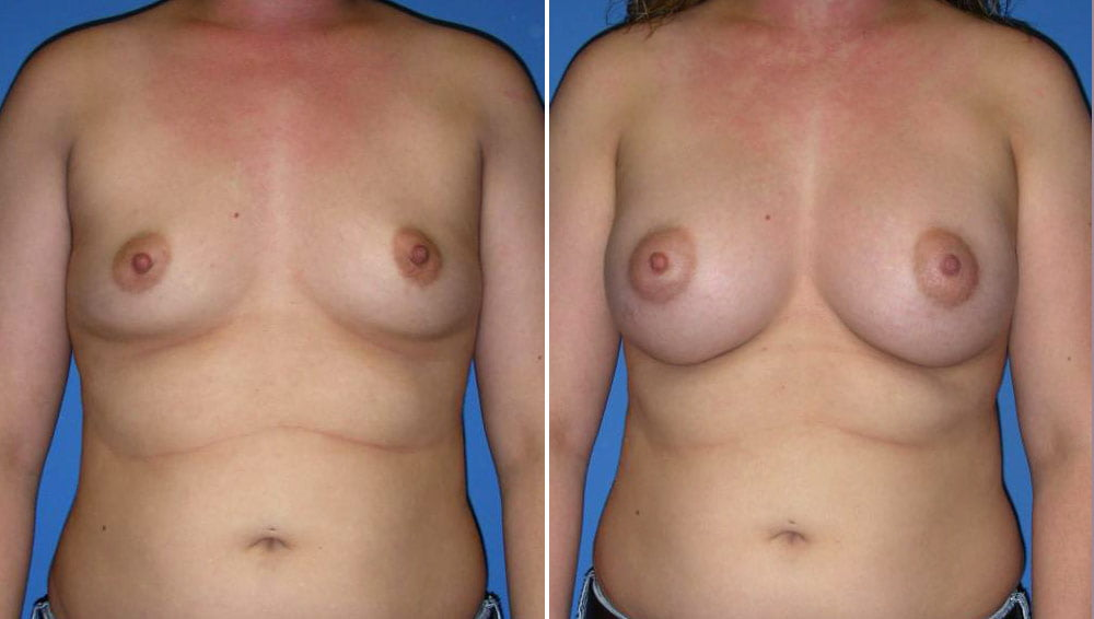 Breast Augmentation Case # 151