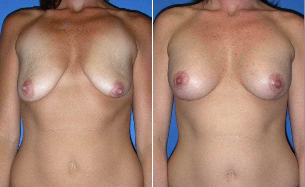Breast Augmentation Case # 152
