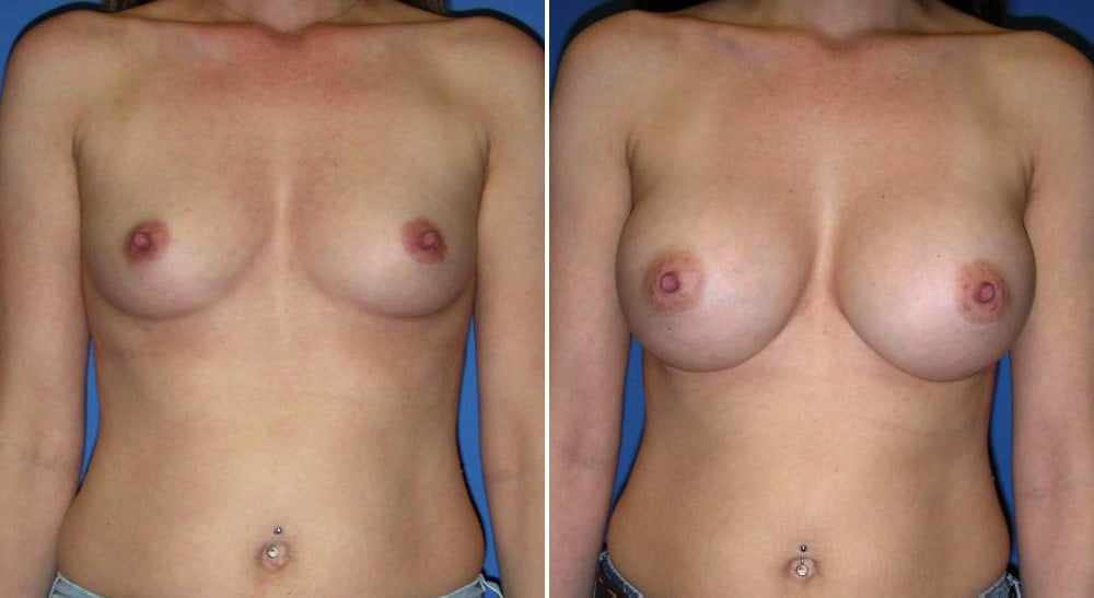 Breast Augmentation Case # 153