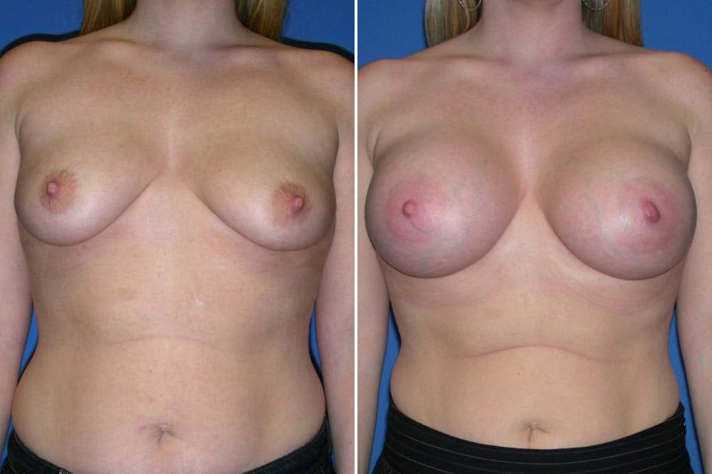 Breast Augmentation Case # 141