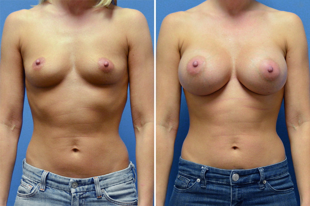 Breast Augmentation Case # 200