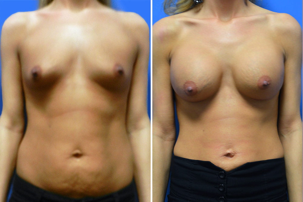 Breast Augmentation Case # 201