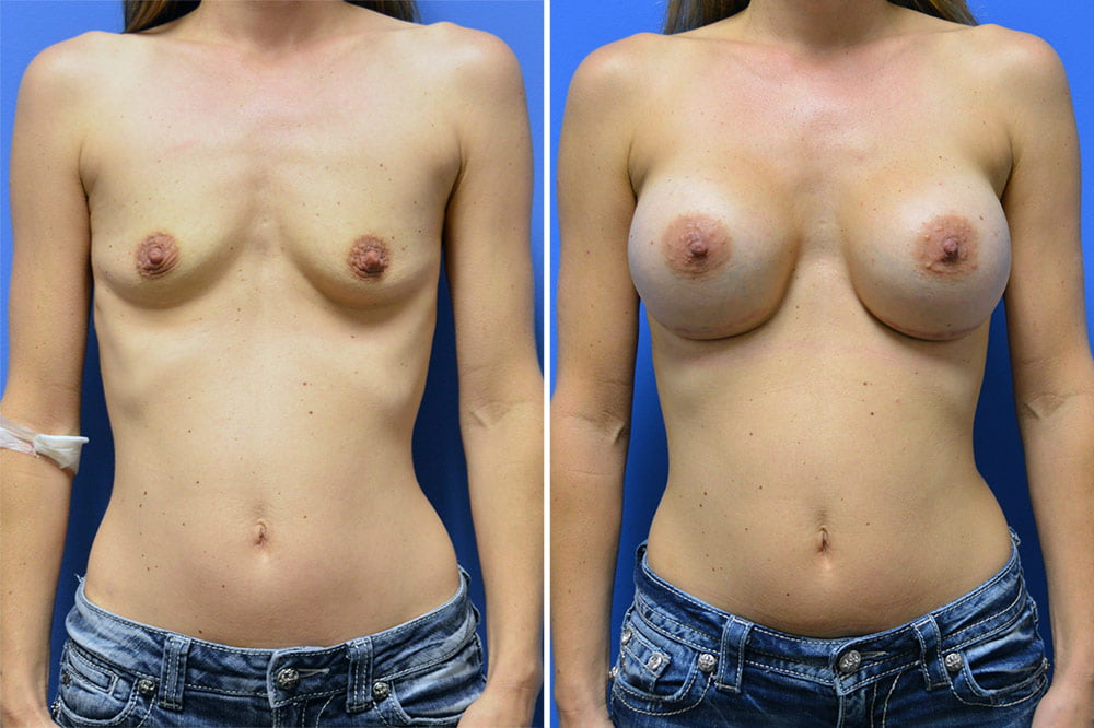 Breast Augmentation Case # 202