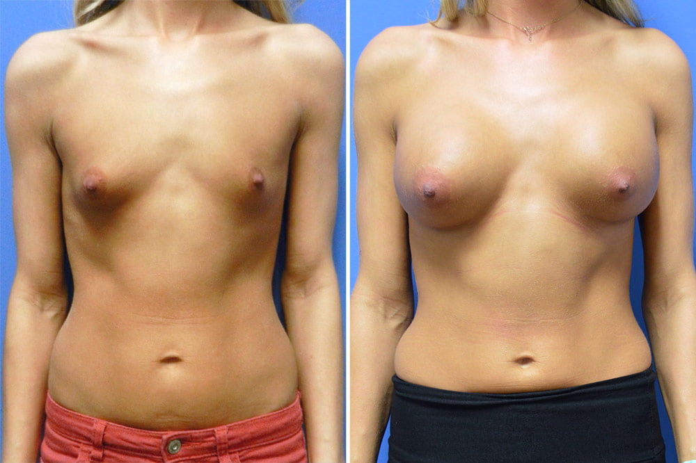 Breast Augmentation Case # 203