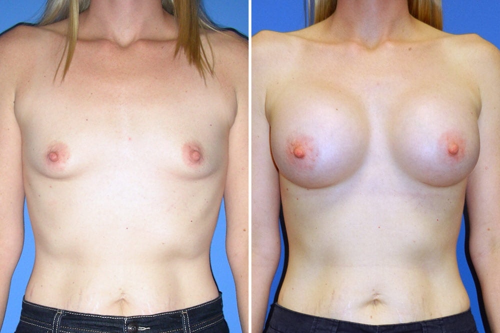 Breast Augmentation Case # 204
