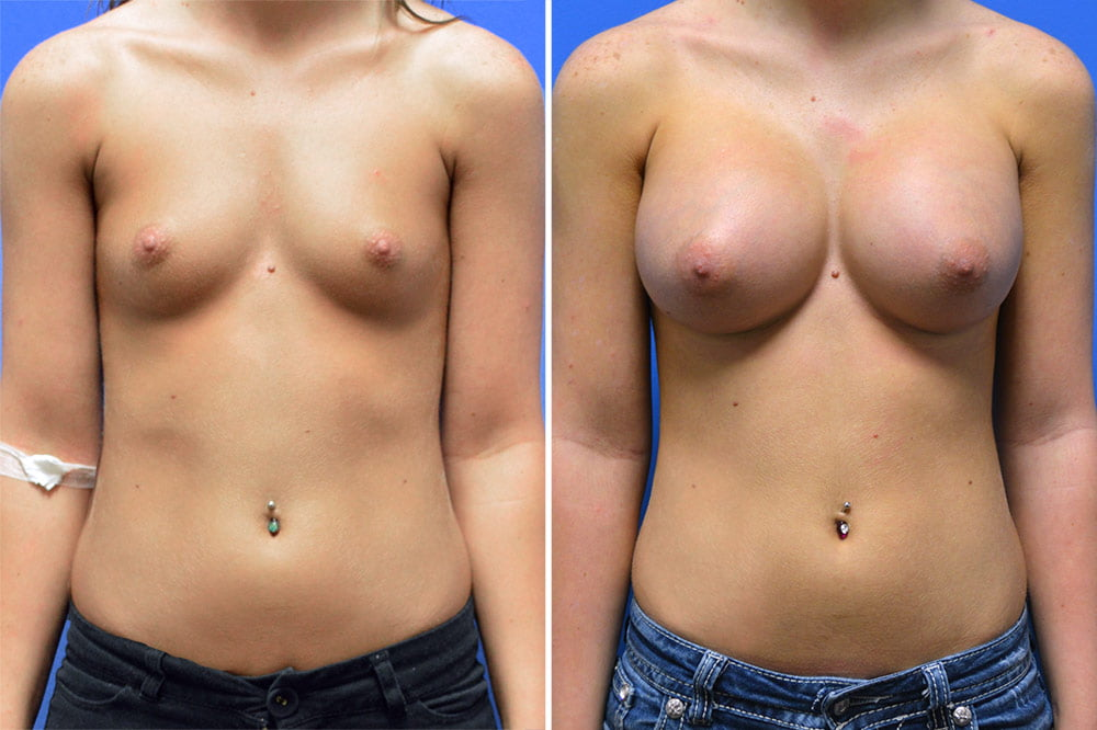 Breast Augmentation Case # 206