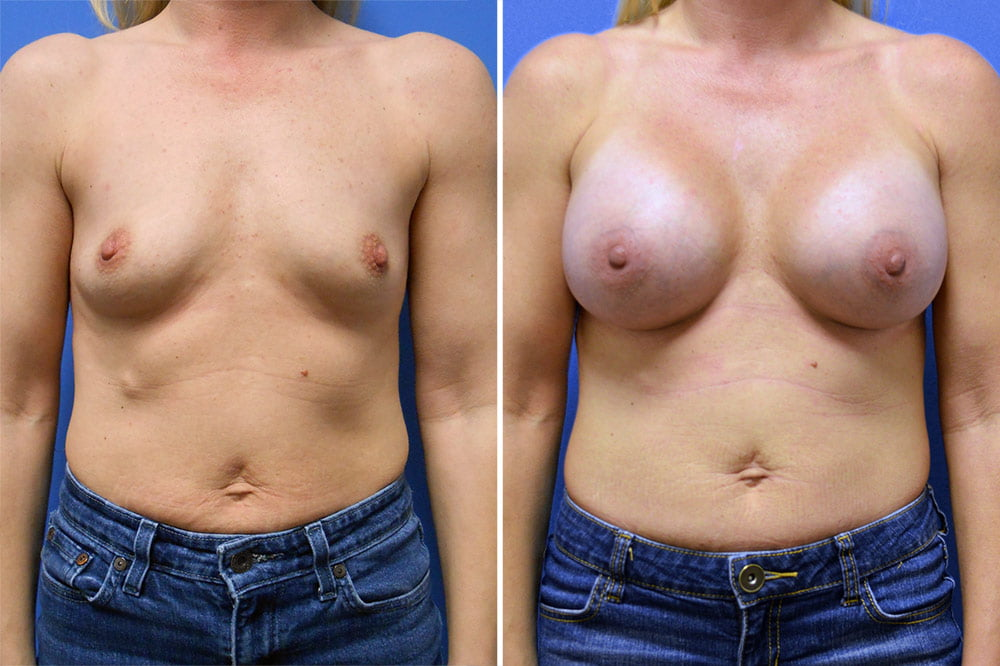 Breast Augmentation Case # 207