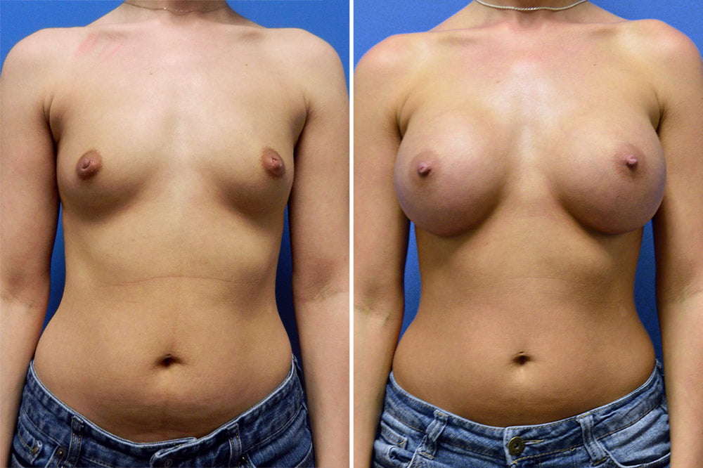 Breast Augmentation Case # 208