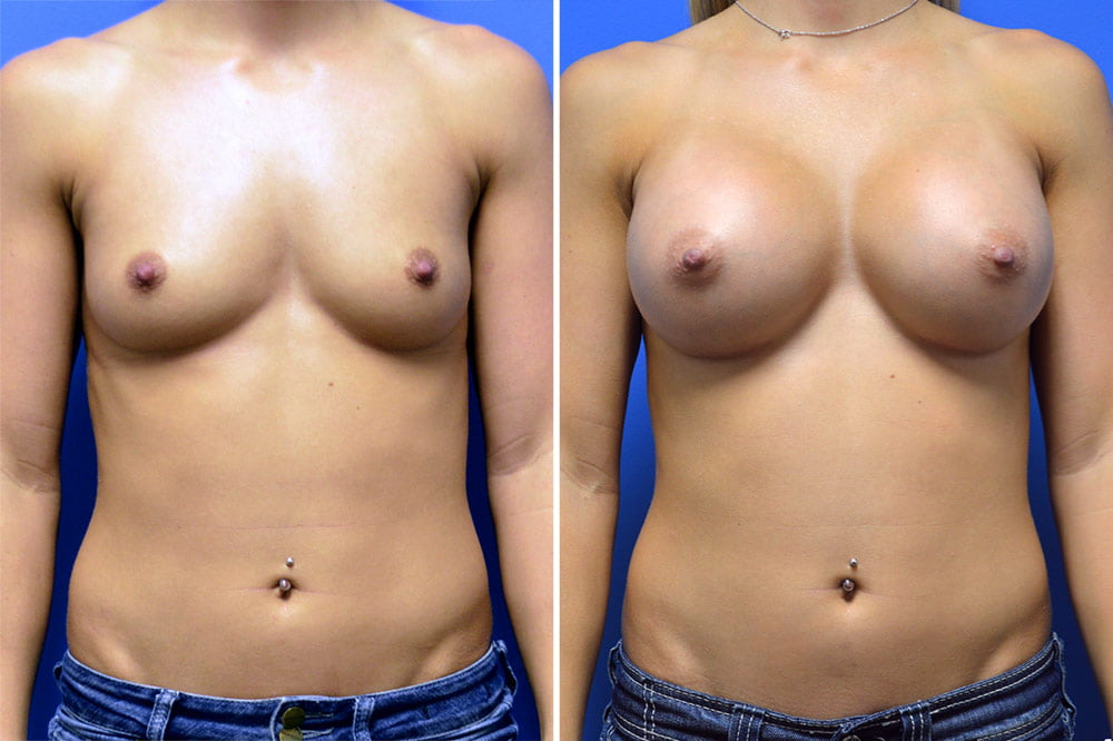 Breast Augmentation Case # 209