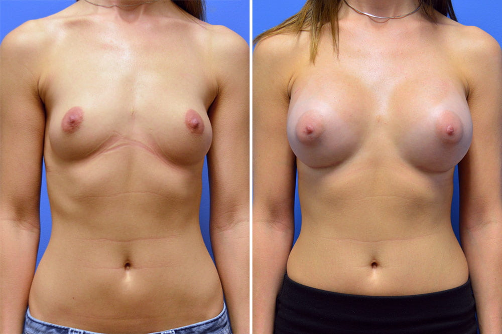 Breast Augmentation Case # 210