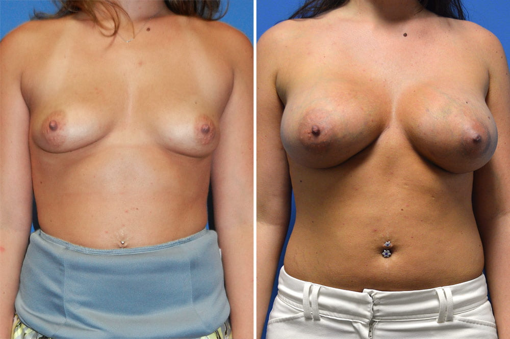 Breast Augmentation Case # 211