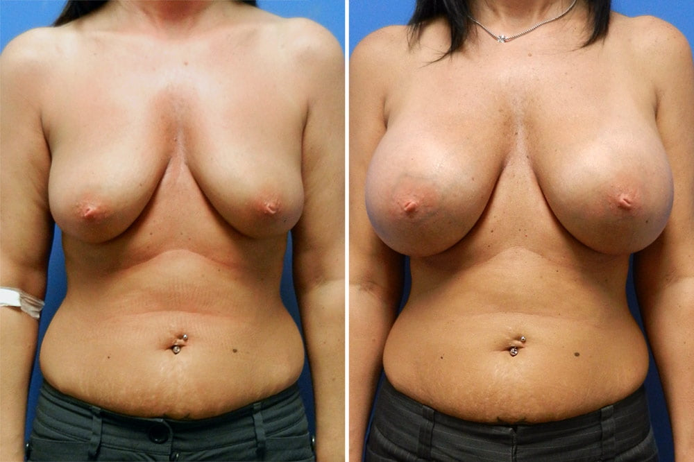 Breast Augmentation Case # 212