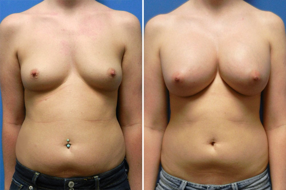 Breast Augmentation Case # 213
