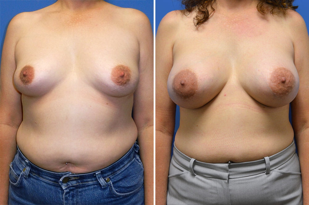 Breast Augmentation Case # 214