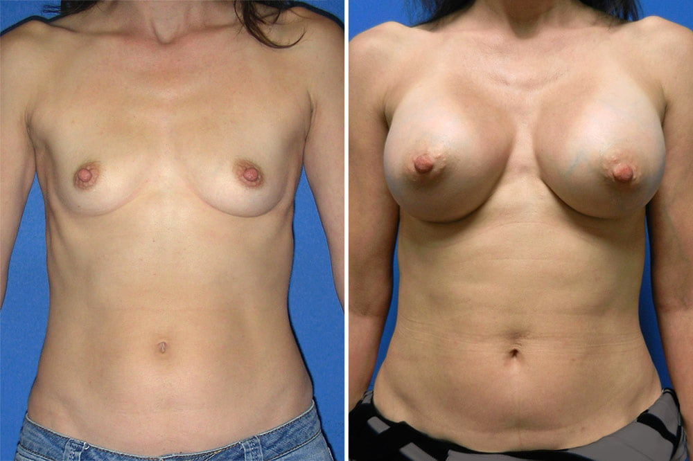Breast Augmentation Case # 215