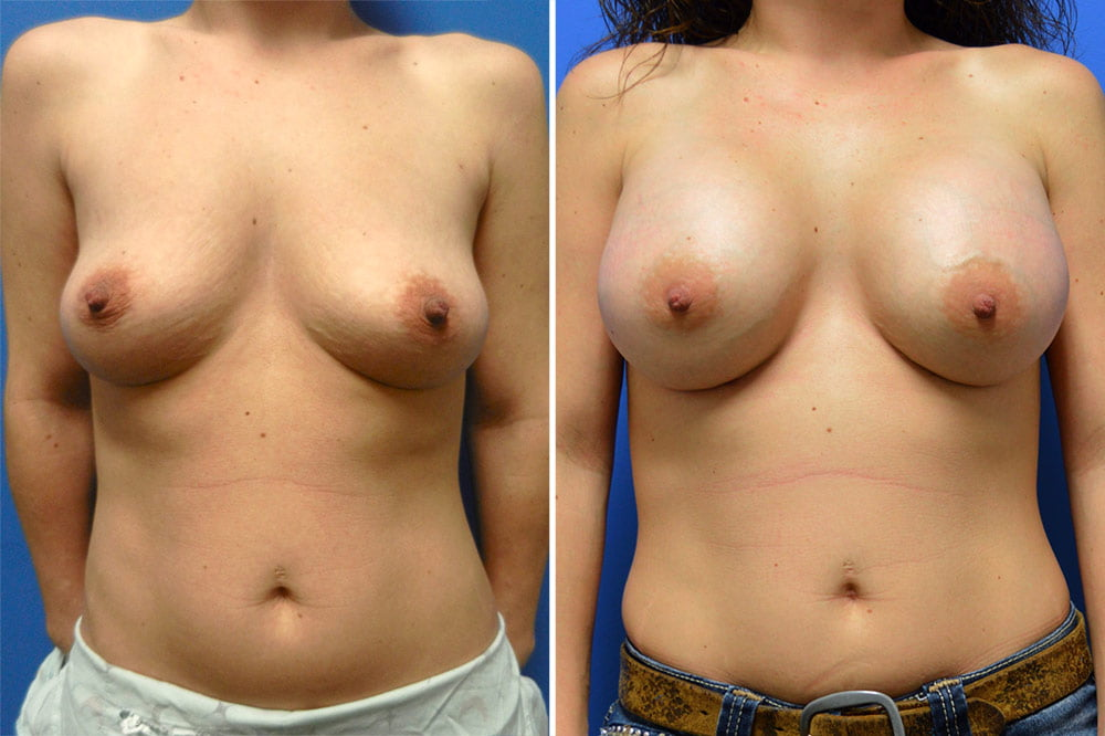 Breast Augmentation Case # 217