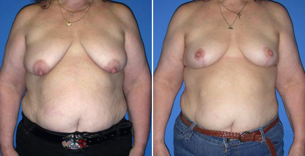 Breast Lift Case # 142