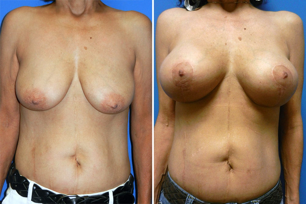Breast Lift with Augmentation Case # 200