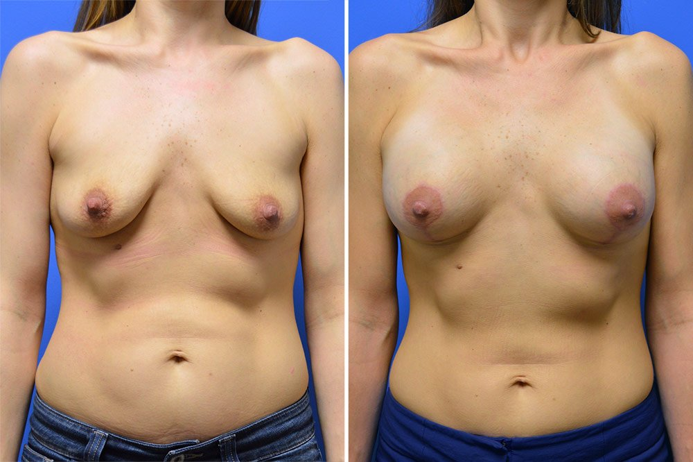 Breast Lift with Augmentation Case # 201