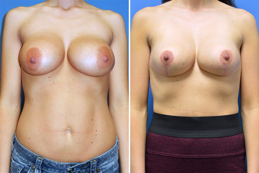 Breast Lift with Augmentation Case # 202
