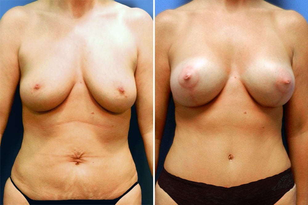 Breast Lift with Augmentation Case # 203