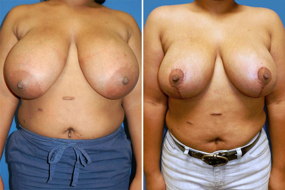Breast  Reduction Case # 200