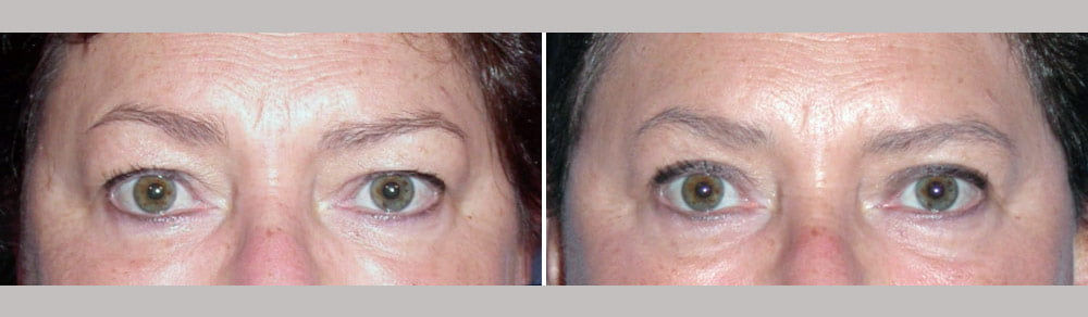 Eyelid Surgery Case # 119
